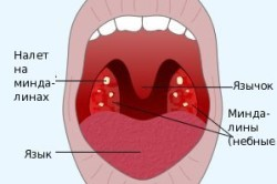 Схема хронического тонзиллита
