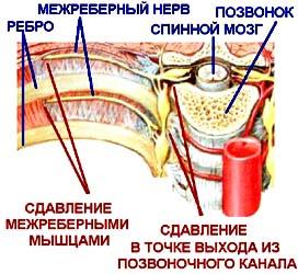Что представляет собой торакалгия