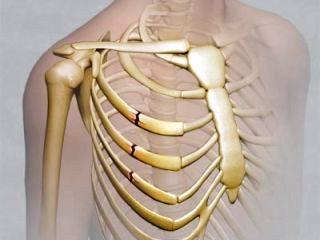 Перелом ребер - широко распространенная травма