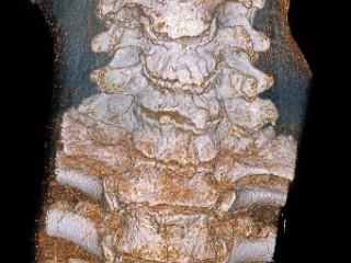 Туберкулез поражает кости и суставы
