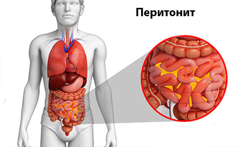 Панкреатические боли может вызвать перитонит