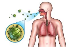 Воздушно-капельный путь передачи инфекции ангины