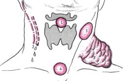 Возникновение шишек при зоглоточном абсцессе